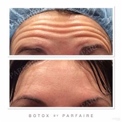 Botox Injections by Parfaire