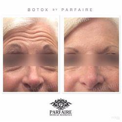 Parfaire Botox