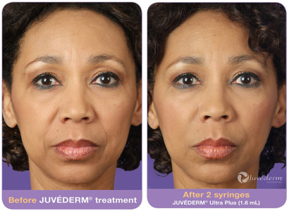 Juvederm Treatment in Pasadena