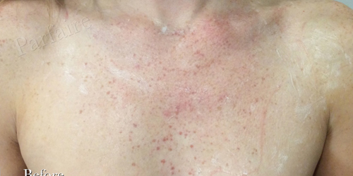 Sunspots on Chest Before