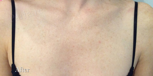 Sunspots on Chest After
