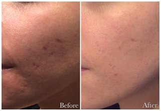 Acne Scar Correction