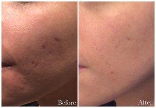 Acne Scar Correction