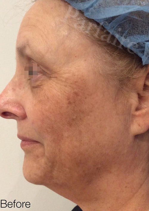 Skin Tightening Treatment 1