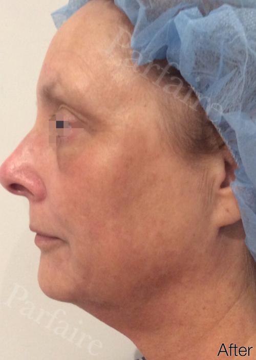 Skin Tightening Treatment 2