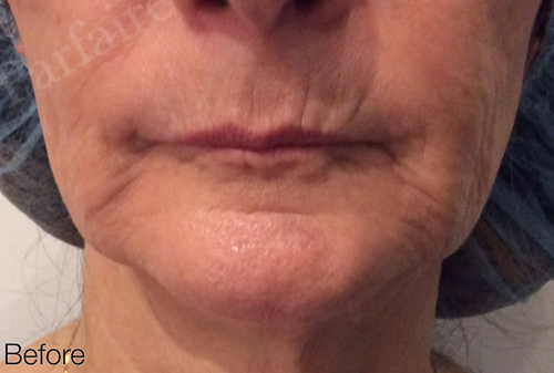 Skin Tightening Treatment 3