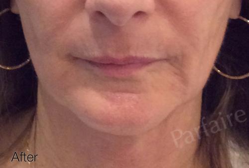 Skin Tightening Treatment 4
