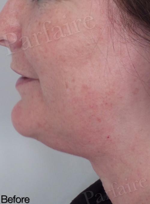 Skin Tightening Treatment 5