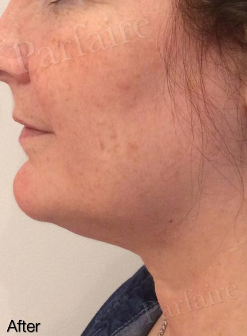 Skin Tightening Treatment 6
