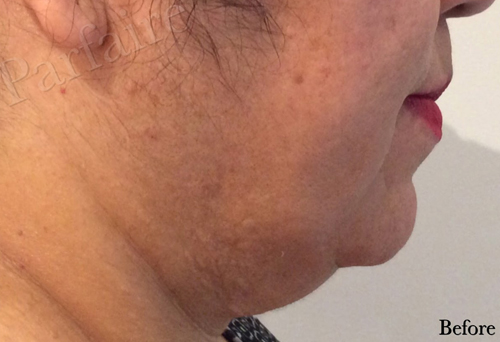 Double Chin Reduction Kybella Before