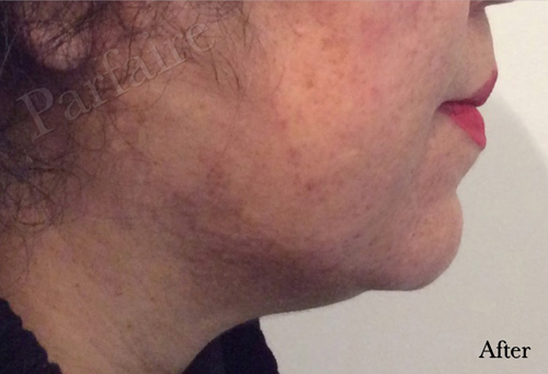 Double Chin Reduction Kybella After