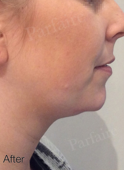Double Chin Reduction After