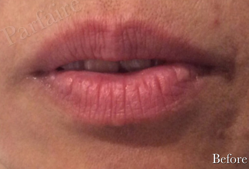 Lip Augmentation Before Pasadena