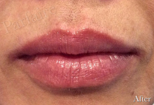 Lip Augmentation After 1