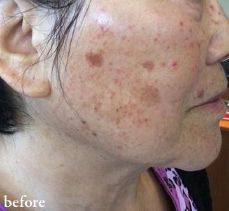 Clear Skin Before