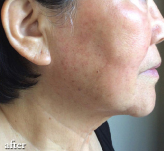 Pigmentation Correction After
