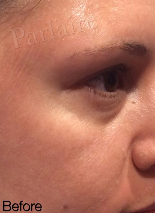 Under Eye Filler Before