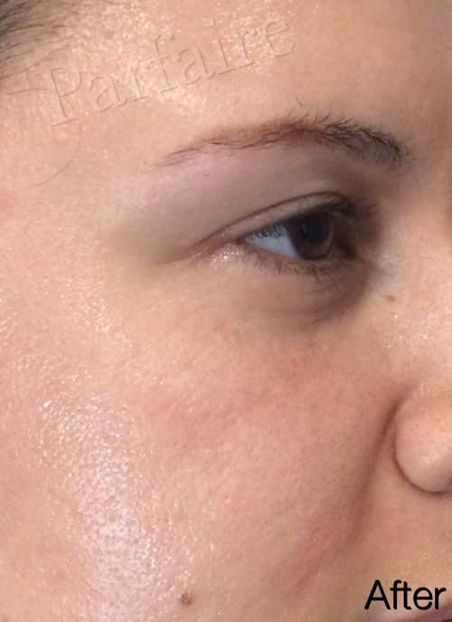 Under Eye Filler | Parfaire Medical Aesthetics