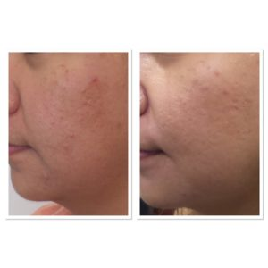 acne-scar-treament-5
