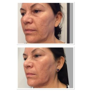 acne-scar-treatment-2