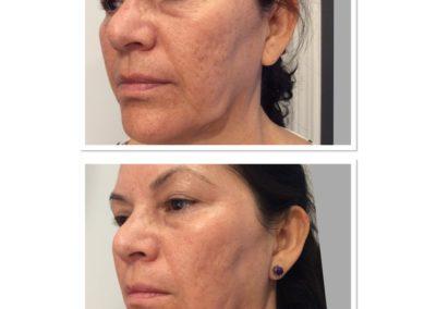 acne-scar-treatment-2
