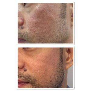 acne-scar-treatment-3
