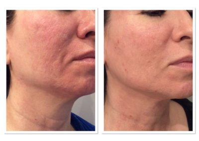 acne-scar-treatment-4