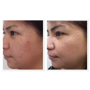 acne-scar-treatment-6