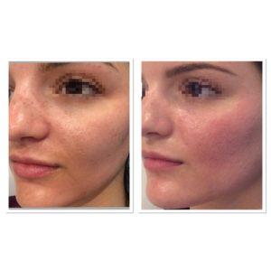 acne-scar-treatment-7