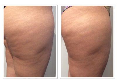 cellulite-reduction-2