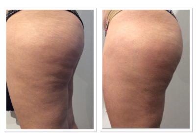 cellulite-reduction-4