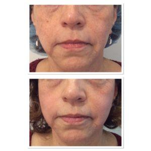 clear-skin-treatment-2