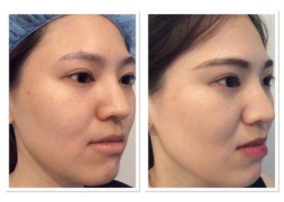 clear-skin-treatment-4