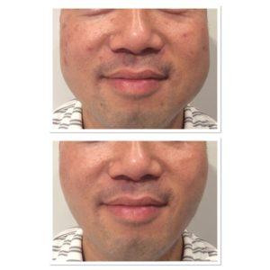 clear-skin-treatment-5
