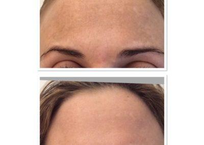clear-skin-treatment-6