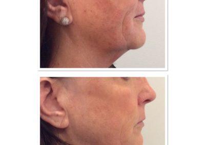 clear-skin-treatment-7
