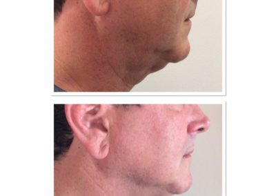 double-chin-reduction-2