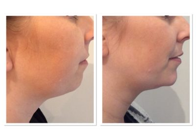 double-chin-reduction-4