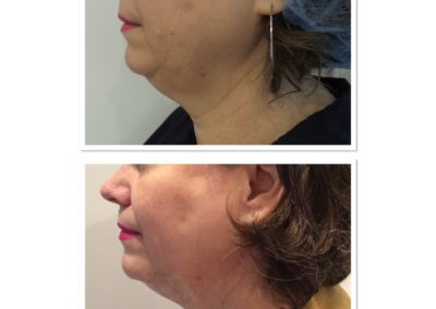 double-chin-reduction