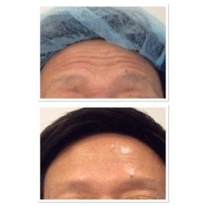 forehead-botox-2