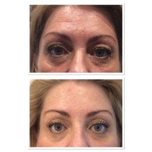 forehead-botox-3
