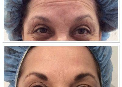 forehead-botox-4