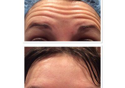 forehead-botox-6