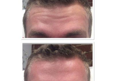 forehead-botox-7