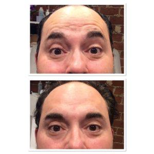 forehead-botox-8