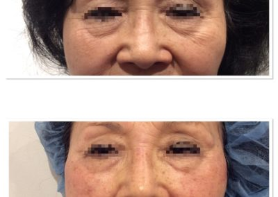 injectables-4