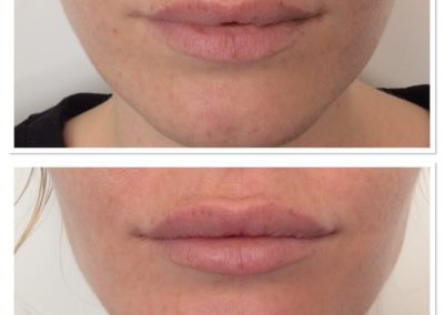 lip-injections-2