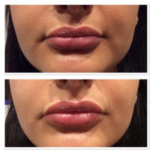 lip-injections-3