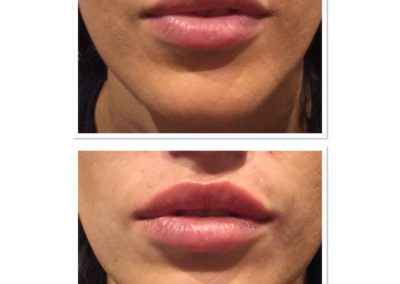 lip-injections-4