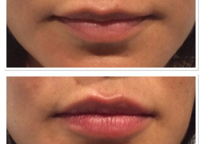 lip-injections-5